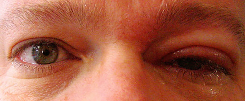 Shingles In The Eye: Causes, Symptoms, Prevention & Treatments
