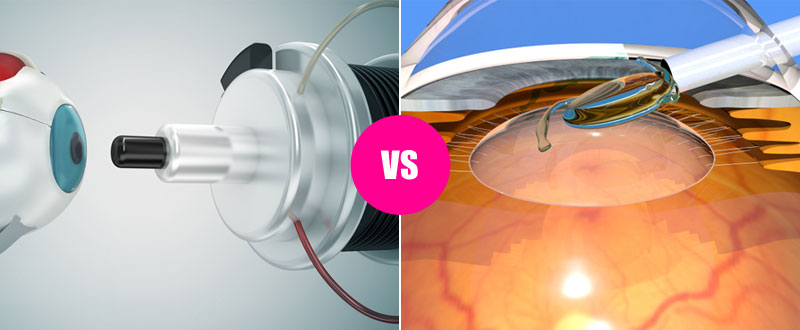 Which is better – LASIK Eye Surgery or Lens Implant?