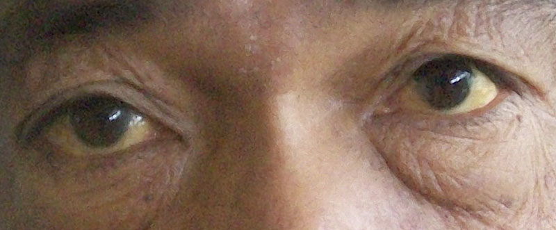 Yellow Eyes (Jaundice Eyes): Causes, Symptoms & Treatments