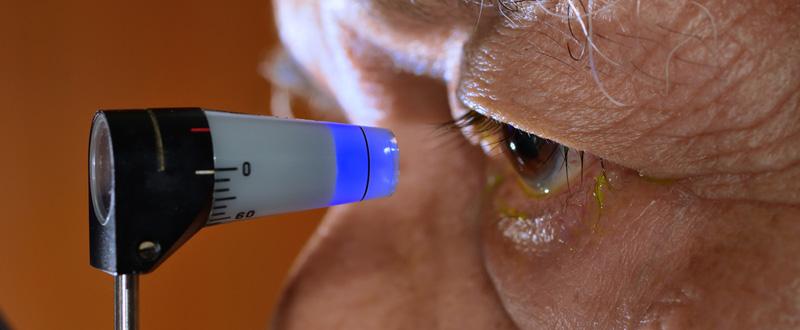 काला मोतिया (ग्लूकोमा) : आंखों की एक गंभीर समस्या