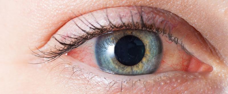 गंभीर समस्या का संकेत हो सकता है आंखों का लालपन