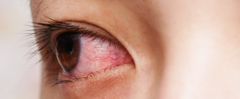 Most Common Eye Problems in India - Symptoms & Treatment Procedure